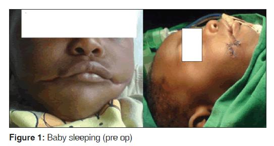 annals-medical-health-Baby-sleeping