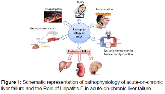 Hepatitis e virus infection in the perspective of acuteon chroni annals medical health chronic liver failure ccuart Image collections