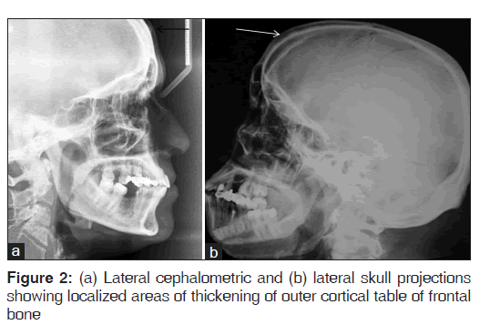 Multiple Peripheral Osteomas of Forehead: Report of a Rare Case