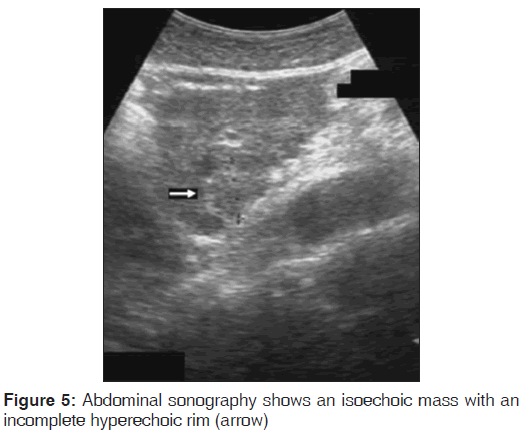 annals-medical-health-sciences-Abdominal-sonography-shows-isoechoic-mass