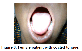 annals-medical-health-sciences-Female-patient-coated-tongue