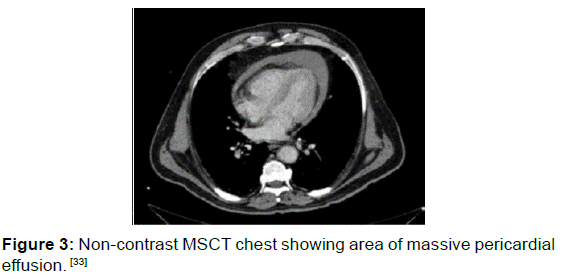 annals-medical-health-sciences-MSCT-chest