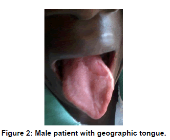 annals-medical-health-sciences-Male-patient-geographic-tongue