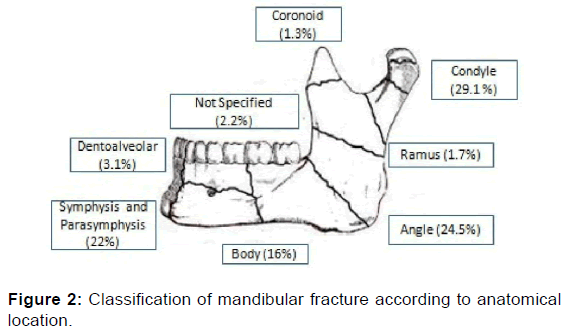 Newer Proposed Classification of Mandibular Fractures: A Critica