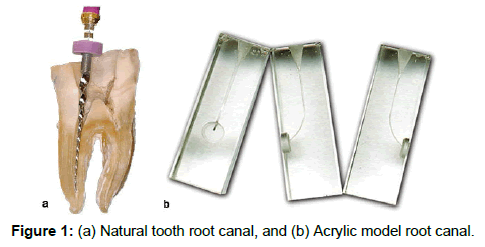 annals-medical-health-sciences-root-canal